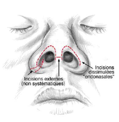 Chirurgie esth tique grenoble interventions for Interieur du nez